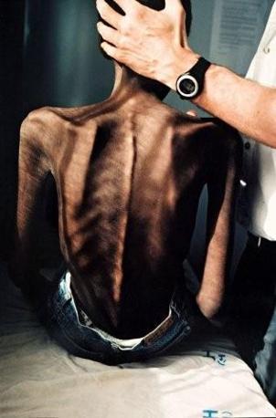 GIDEON MENDEL «La sofferenza». Un dottore tiene la testa di un paziente malato di AIDS durante una visita. Lusikisiki, Sudafrica