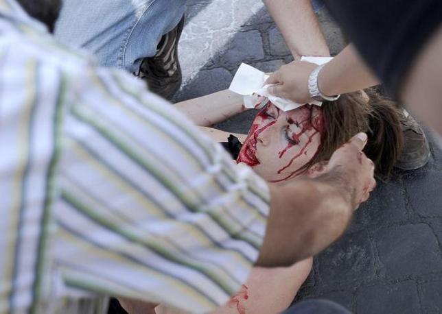 La ragazza di 22 anni che ha ricevuto le manganellate è riversa a terra in una pozza di sangue. Ricoverata in ospedale, ha ricevuto poi 15 punti di sutura  (Foto Jpeg)