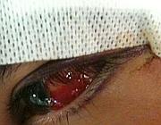 Particolare dell'occhio ferito (Foto Proto)