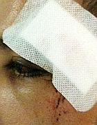 Particolare della ferita all'occhio (Foto Proto)
