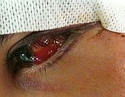 Il ragazzo picchiato ha rischiato di perdere un occhio (Proto)