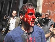 Il manifestante ferito (Ansa)