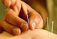 Una sessione di agopuntura