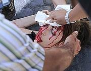 La manifestazione dei movimenti per la casa: la ragazza ferita e sanguinante